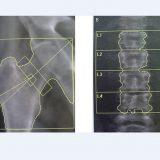 骨がもろくなる骨粗鬆症と骨塩定量検査(骨密度検査)について