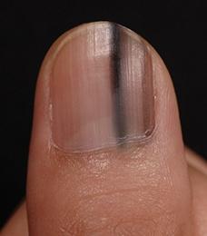 爪 メラノーマ