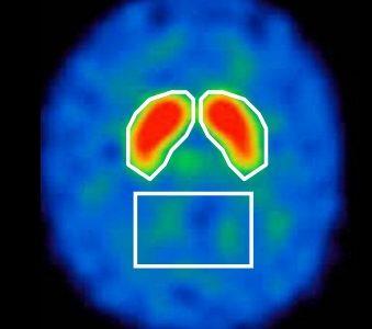 認知症の新しい検査:DatScan(ダットスキャン)による認知症検査