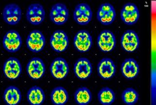 脳の血流状態から認知症を見つけ出す脳血流シンチグラフィ