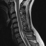 【ライフログ】キアリ奇形に伴う脊髄空洞症の手術を経験しました